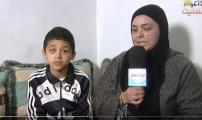 تشوه عين عبد الصمد يحول دون عيشه حياة طبيعية وأمه تستنجد القلوب الرحيمة لزراعة عين اصطناعية
