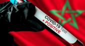 المغرب يسجل 68 إصابة جديدة مؤكدة بفيروس كورونا خلال ال 24 ساعة الماضية